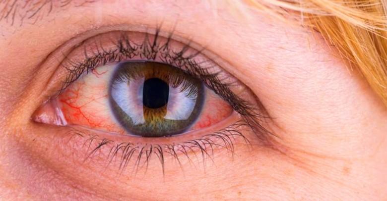 ¿Ojos rojos? 6 razones por las que esto sucede