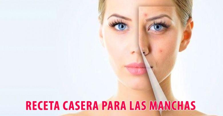 Dermatóloga explica receta casera contra manchas de la piel