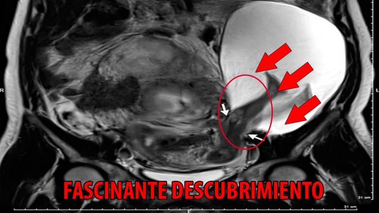Raro descubrimiento médico en el útero de una paciente